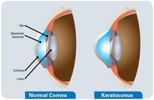 Keratoconus effects on the eye.