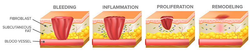 The wound healing process involves overlapping stages of bleeding, inflammation, proliferation, and remodeling (epithelialization).