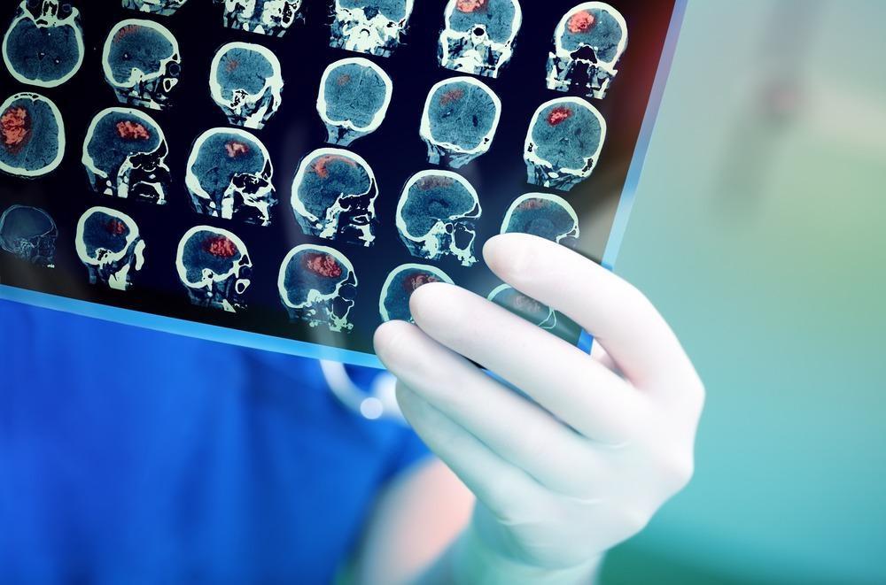 stroke, brain, artificial intelligence, imaging