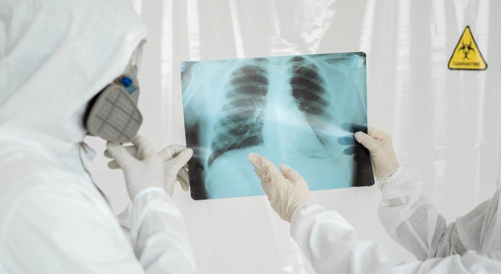covid-19, x-ray