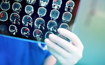 Detecting Acute Stroke Early with Artificial Intelligence and Imaging