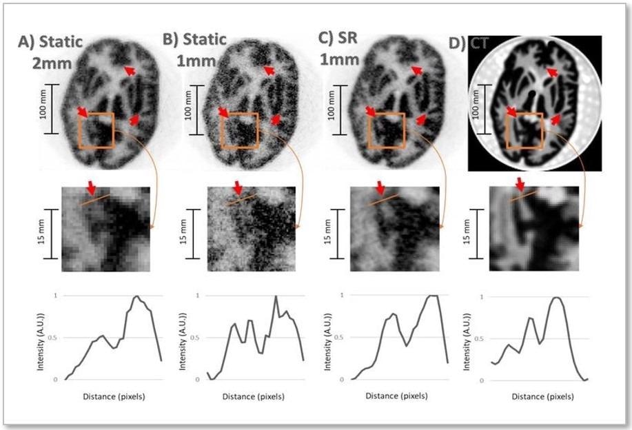 New Imaging Technique has Potential to Detect Neurological Disorders