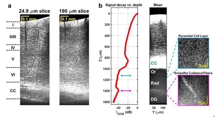 New Label-Free, Non-Invasive Optical Microscopy to Image Deep Inside the Brain.