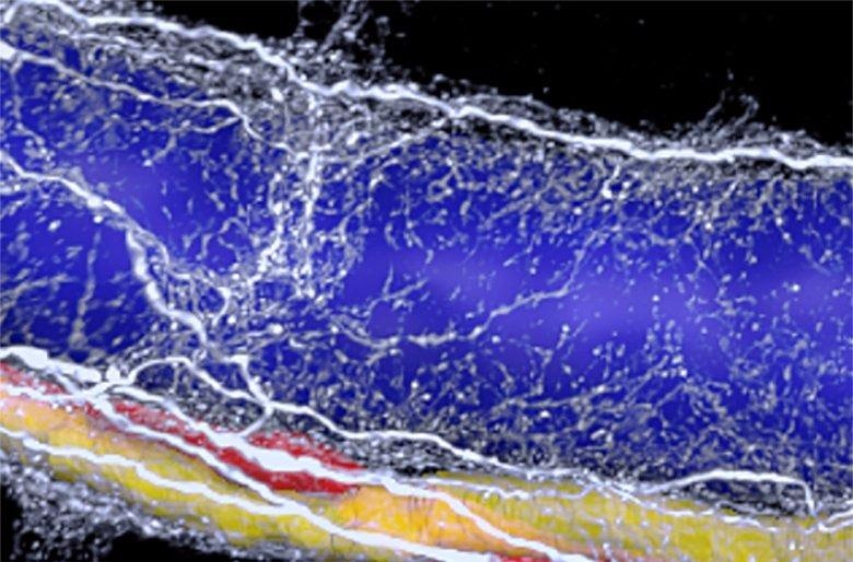 3D Imaging Shows Degeneration of Nerves is Correlated with Liver Pathology Severity