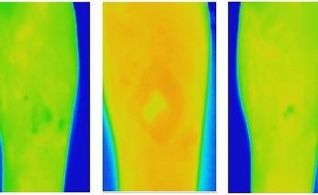 New Thermal Imaging Technique can Improve Chronic Wound Care