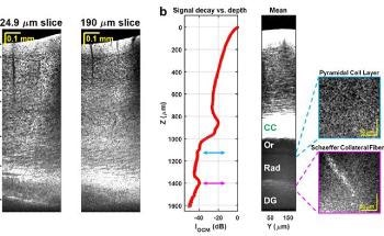 New Label-Free, Non-Invasive Optical Microscopy to Image Deep Inside the Brain