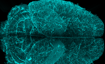 Imaris launches version 9.8: Allowing Users to Better Analyse Large Volume Microscopy Datasets