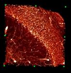 Formalin-Induced Fluorescence Ultramicroscopy